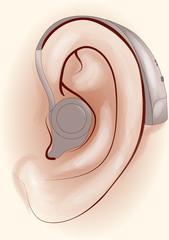 Audio Login Apparecchi per L'Acustica
